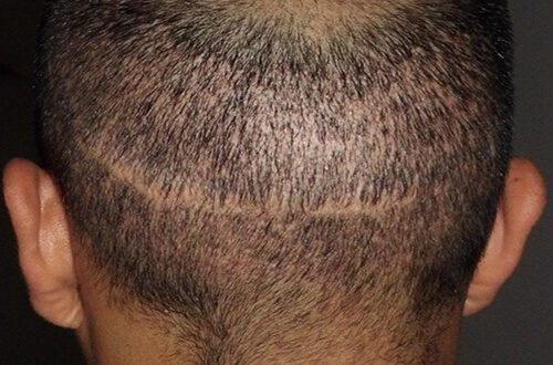 Cubrir Cicatrices en la cabeza con trasplante de pelo