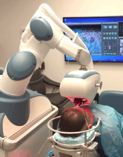 robot para trasplante capilar