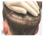 cicatriz_trasplante_pelo_FUT