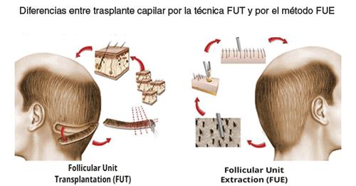 diferencias trasplante capilar FUE y FUT