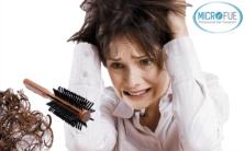 Estrés y pérdida de pelo