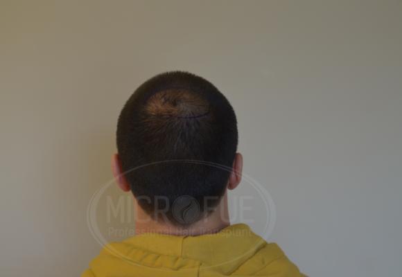 fotos_resultado_injerto_capilar_Turquía_Microfue_00