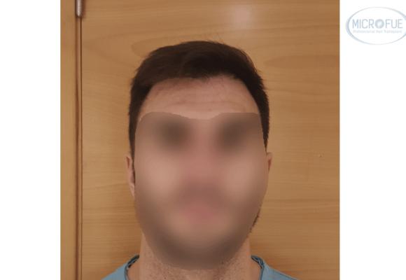 fotos_resultado_injerto_capilar_Turquía_Microfue_02