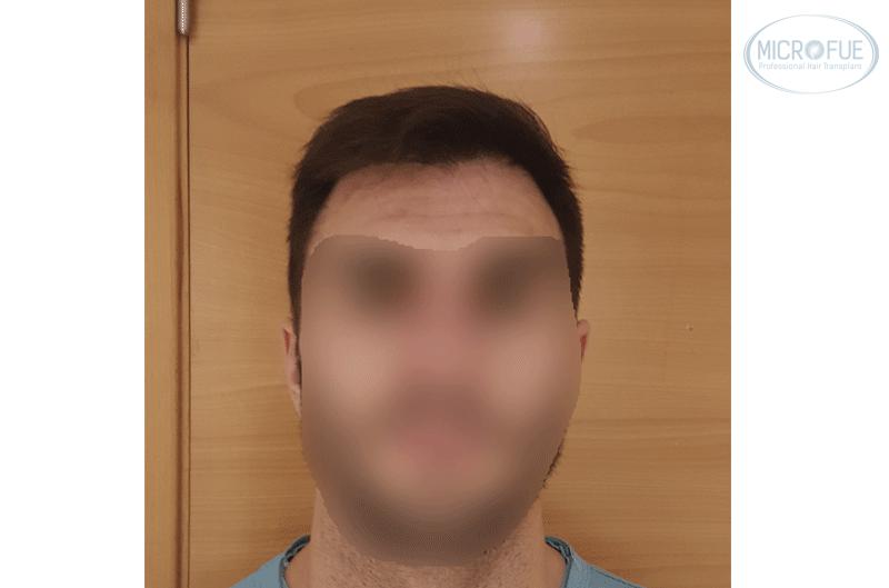 Resultado trasplante capilar 035