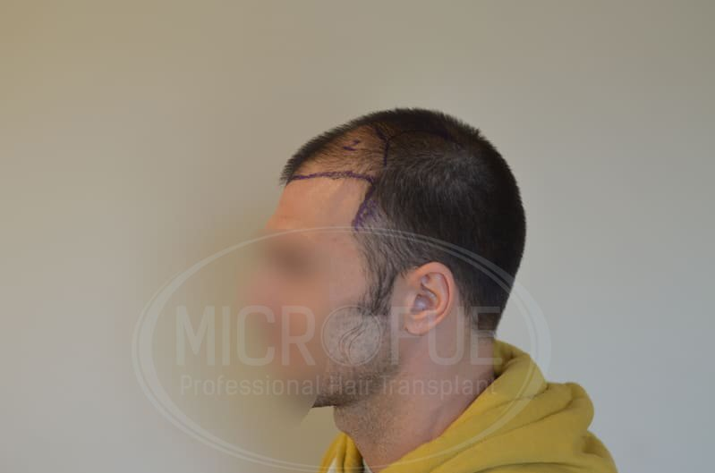 fotos_resultado_trasplante_pelo_Turquía_Microfue_036_z_