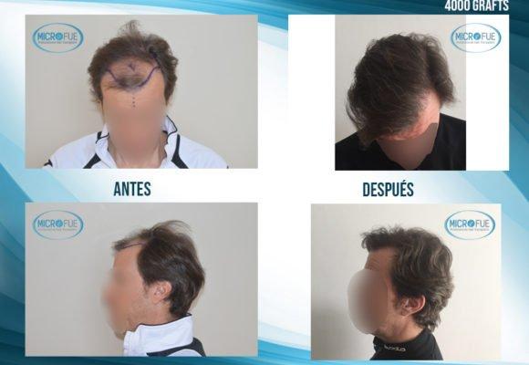 antes y después trasplante capilar Turquía MicroFue