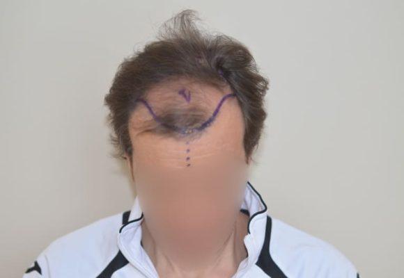 fotos_resultados_trasplante_capilar_MicroFue_032_1