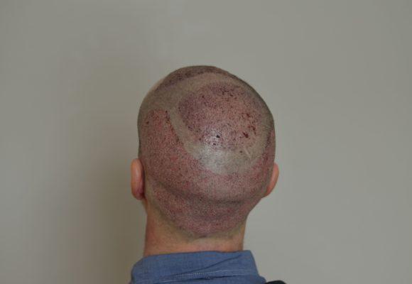 fotos_resultados_trasplante_capilar_MicroFue_032_12