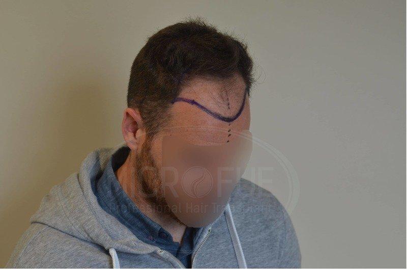Resultados de trasplante capilar en turquia microfue