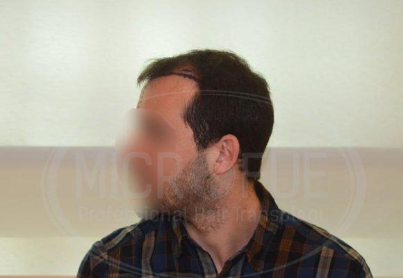 fotos_resultados_trasplante_capilar_Turquia_MicroFue_037_04.