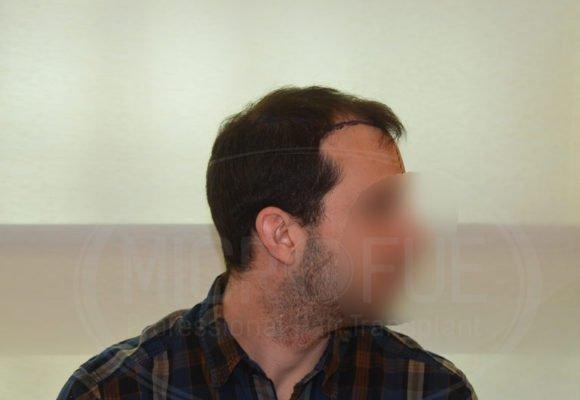 fotos_resultados_trasplante_capilar_Turquia_MicroFue_037_08