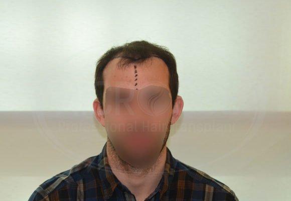 fotos_resultados_trasplante_capilar_Turquia_MicroFue_037_09