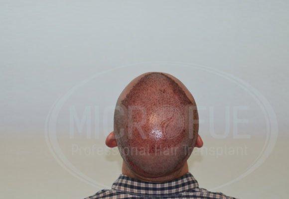 fotos_resultados_trasplante_capilar_Turquia_MicroFue_037_01