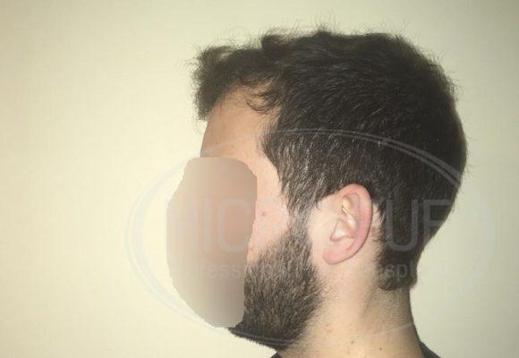 fotos_resultados_trasplante_capilar_Turquia_MicroFue_037_14