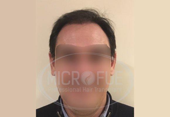 fotos_trasplante_capilar_turquia_resultados_39_25