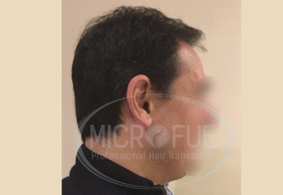 fotos_trasplante_capilar_turquia_resultados_39_27