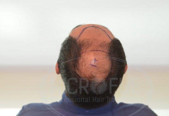 fotos_trasplante_capilar_turquia_resultados_39_8
