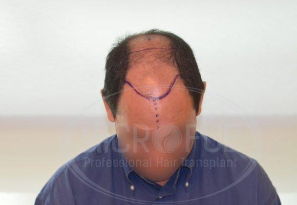 fotos_trasplante_capilar_turquia_resultados_39_9