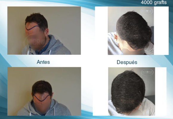 fotos resultado trasplante de pelo en Turquía