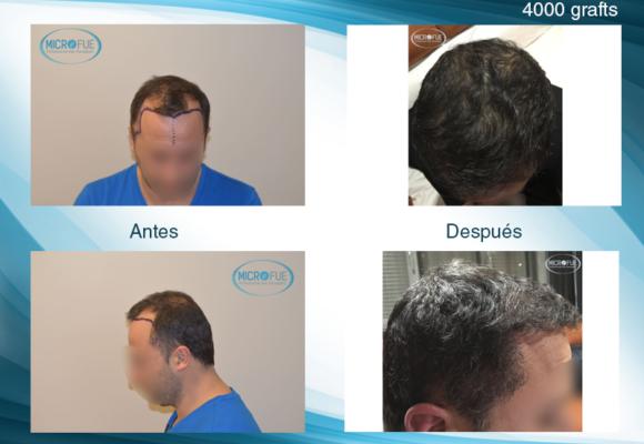 Fotos de resultados injerto capilar en Turquía con MicroFue