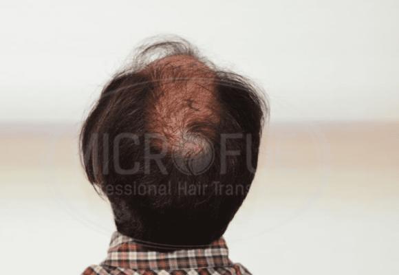 resultados_trasplante_capilar_fotos_12