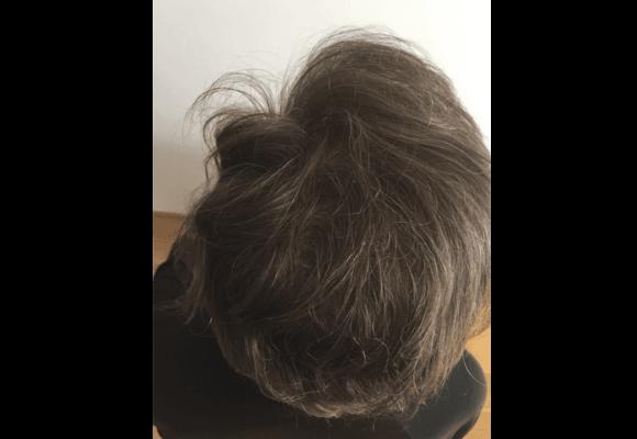 fotos_resultados_trasplante_capilar_MicroFue_032_17