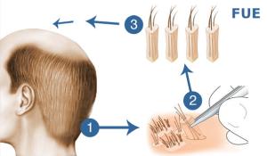 trasplante capilar método FUE Microfue