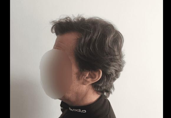 fotos_resultados_trasplante_capilar_MicroFue_032_16