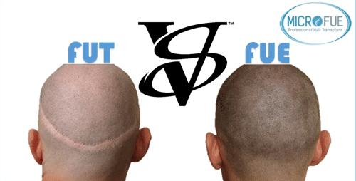 Trasplante capilar FUE vs FUT