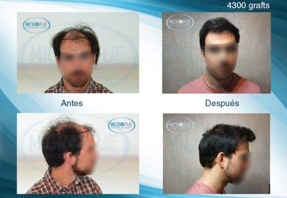 muy_buenos_resultados_trasplante_capilar_Turquía_Microfue