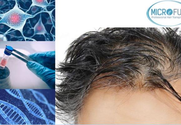 Células madre alopecia y trasplante capilar