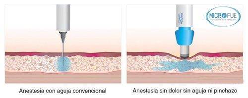 anestesia sin dolor en trasplante capilar