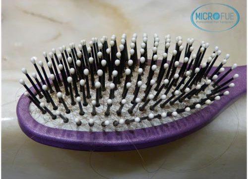 Cómo cambia el pelo en la menopausia