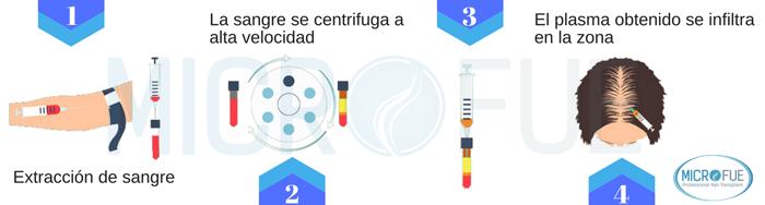 en_que_consiste_el_tratamiento_plasma_rico_en_plaquetas