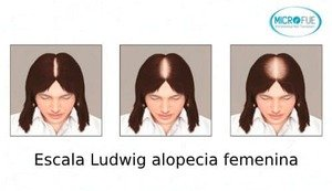 Escala Ludwig para alopecia femenina