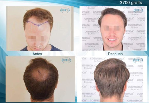 fotos-resultados-trasplante-capilar-turquia_55