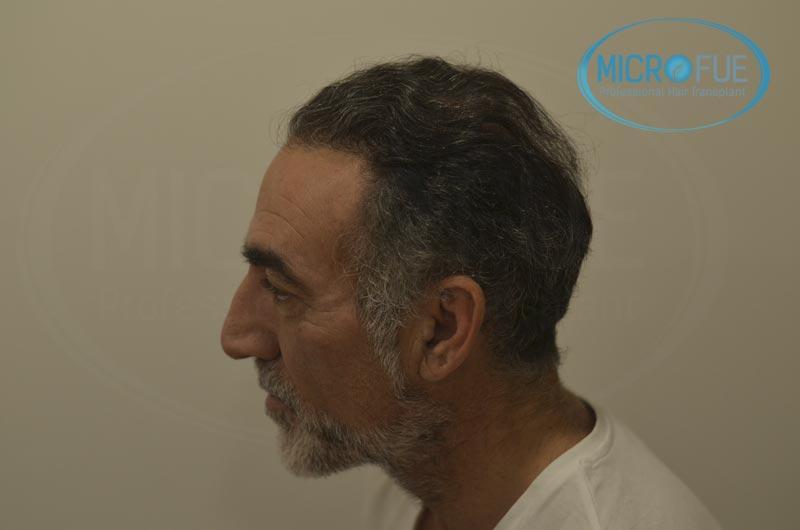 fotos_resultados_trsplante_de_pelo_turquia_Microfue_FUE_10