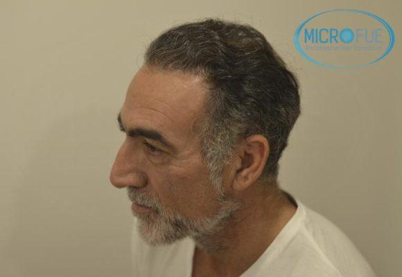 fotos_resultados_trsplante_de_pelo_turquia_Microfue_FUE_11