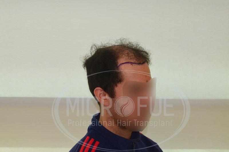 resultado_trasplante_capilar_turquia_microfue_6