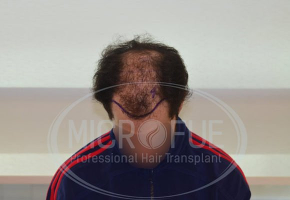 resultado_trasplante_capilar_turquia_microfue_9