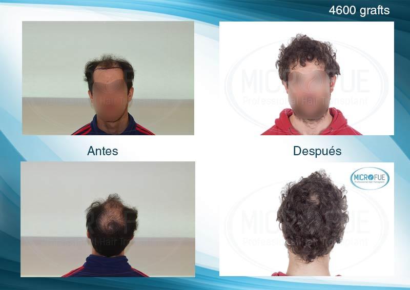 resultado_trasplante_capilar_turquia_microfue_fotos