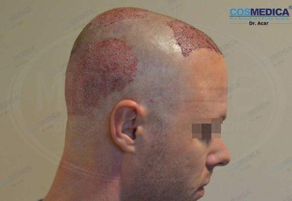 resultado_trasplante_pleo_capilar_Turquia_FUE_Microfue_01