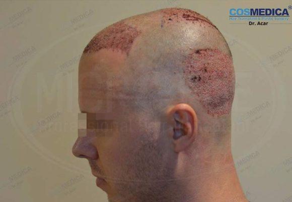 resultado_trasplante_pleo_capilar_Turquia_FUE_Microfue_03
