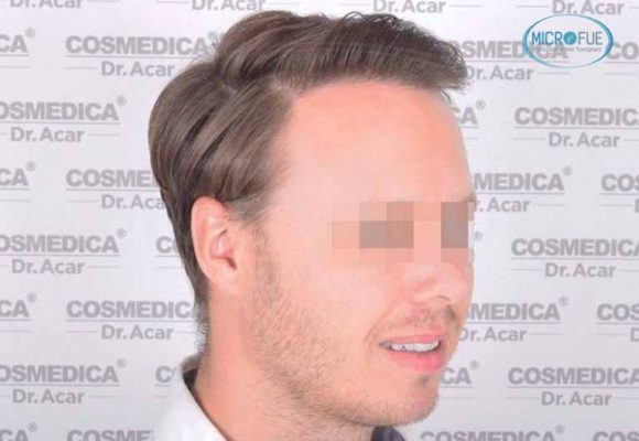 resultado_trasplante_pleo_capilar_Turquia_FUE_Microfue_13