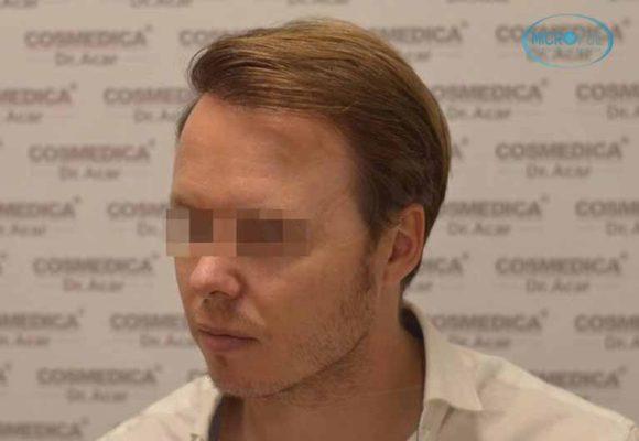 resultado_trasplante_pleo_capilar_Turquia_FUE_Microfue_17