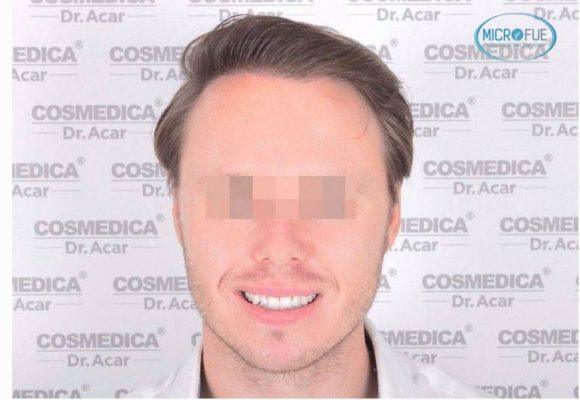 resultado_trasplante_pleo_capilar_Turquia_FUE_Microfue_21