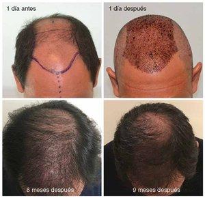 crecimiento pelo tras trasplante capilar