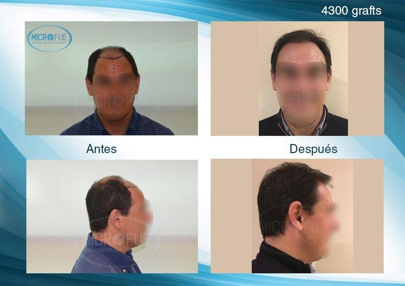 resultados_fotos_injerto_capilar_Turquia_Microfue