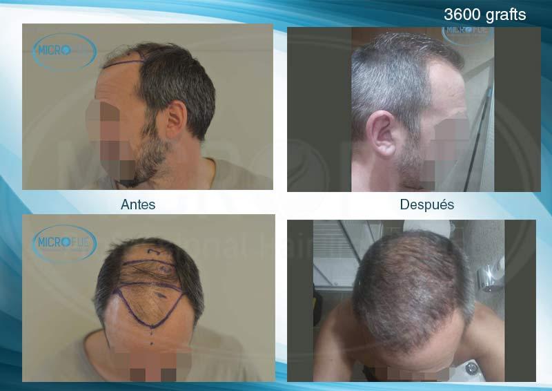 resultados_fotos_injerto_trasplante_capilar_turquia_microfue_31_00