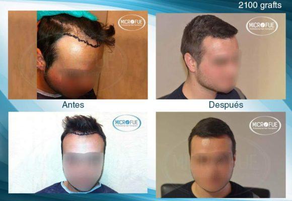 resultados_fotos_injerto_trasplante_capilar_turquia_microfue_5_00